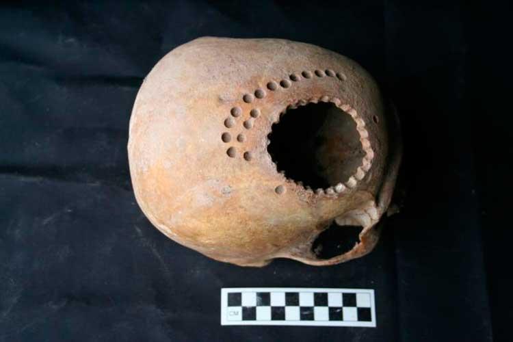 трепанация черепа в древнем Перу
