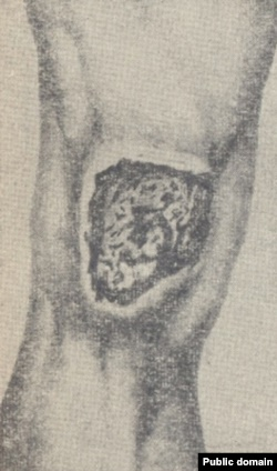 Ипритная язва в области коленного сустава, 18 день