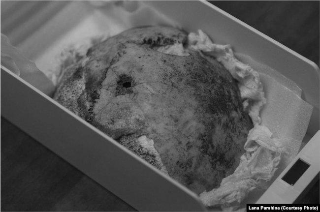 Принадлежит ли этот фрагмент черепа Гитлеру?
